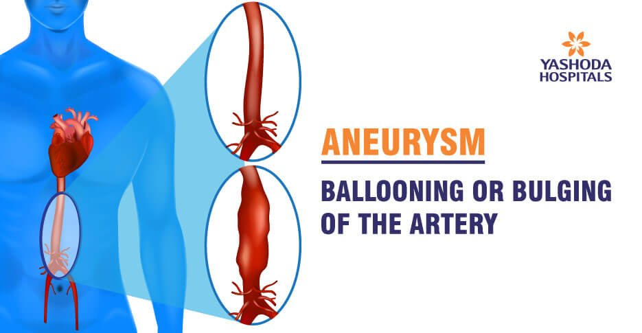 Aneurysm types, causes, diagnosis, treatment