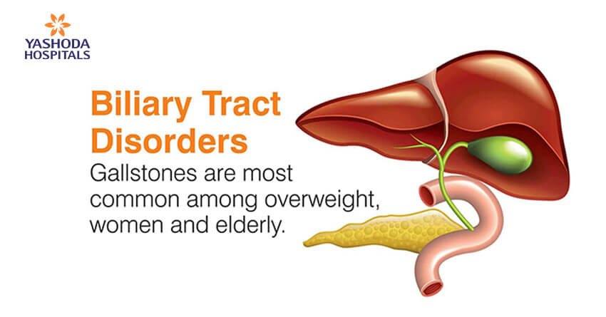Biliary Tract Disorders: Gallstones