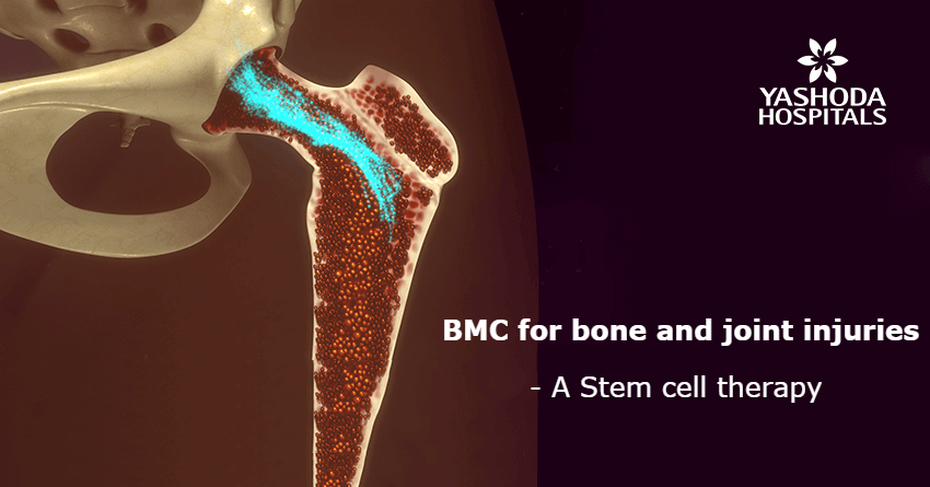 Bone Marrow Concentrate (BMAC)