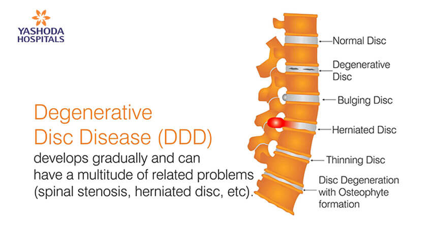 Degenerative Disc Disease develops gradually and can have a multitude of related problems