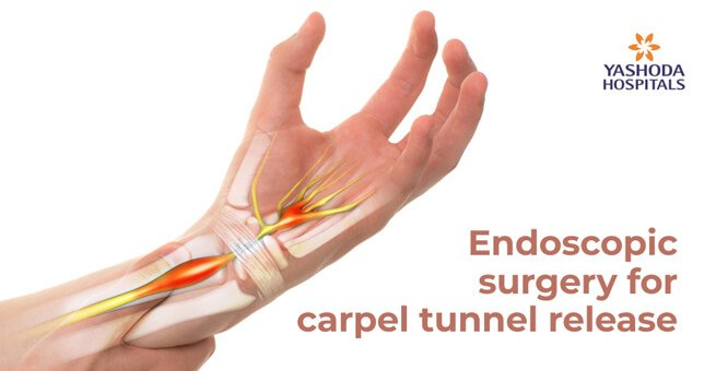 Endoscopic carpal tunnel release surgery