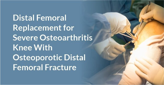 Distal Femoral Replacement for Severe Osteoarthritis Knee With Osteoporotic Distal Femoral Fracture