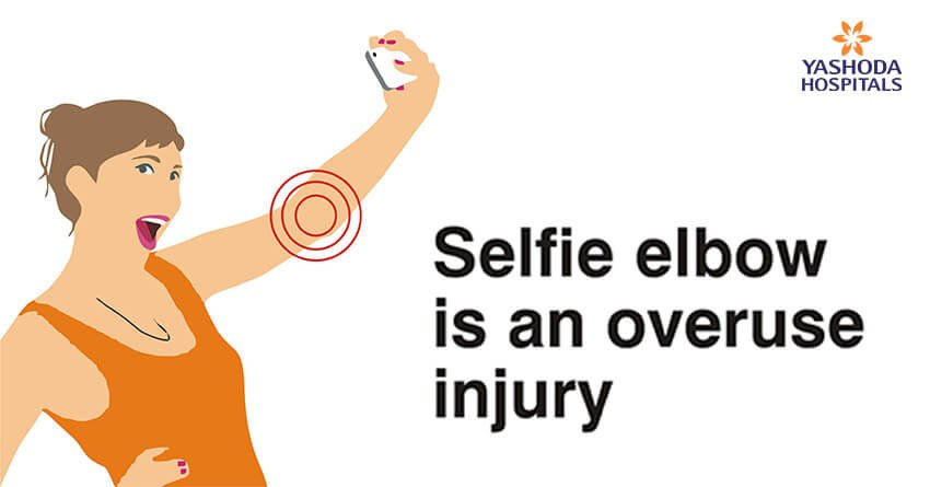 Selfie elbow is an overuse injury; only conscious efforts to take pressure off the elbow may be of help