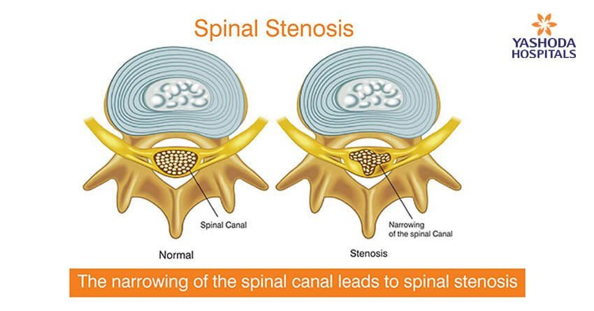 Spinal stenosis - Narrowing on Narrow Spaces of Your Spine