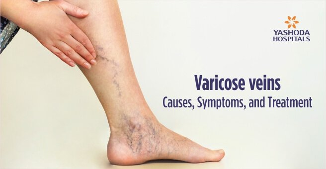Varicose Veins Causes Symptoms Treatment Diagnosis And Prevention