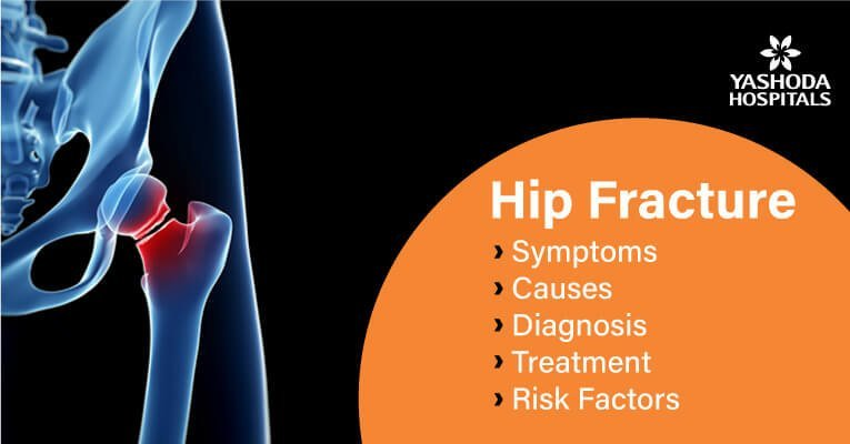 Hip Fracture: symptoms, causes, diagnosis, treatment, risk factors