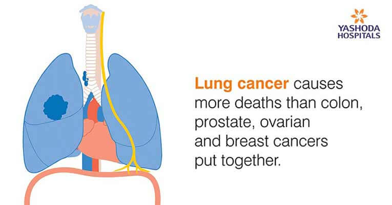 lung cancer causes more deaths