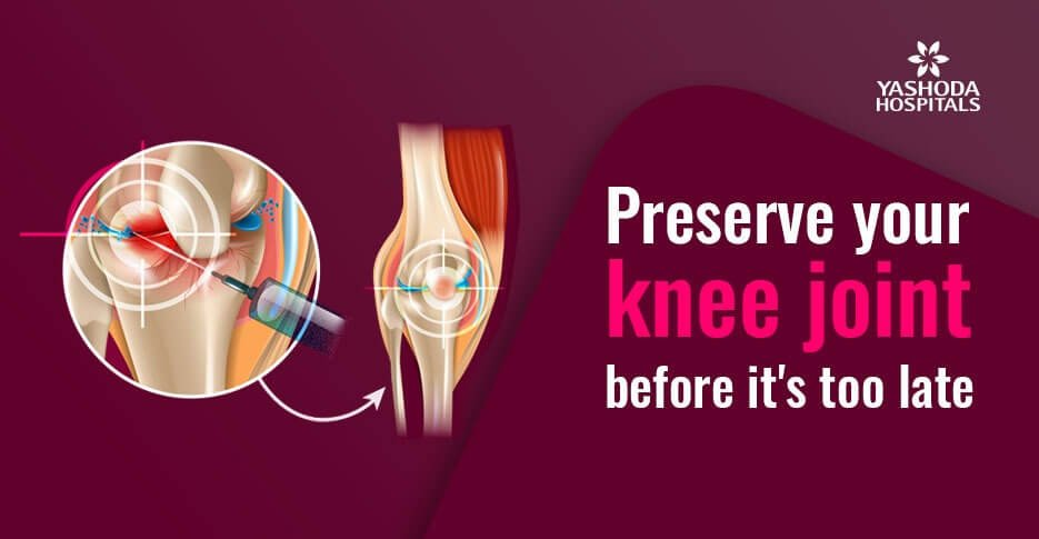 preserve your knee joint before its too late